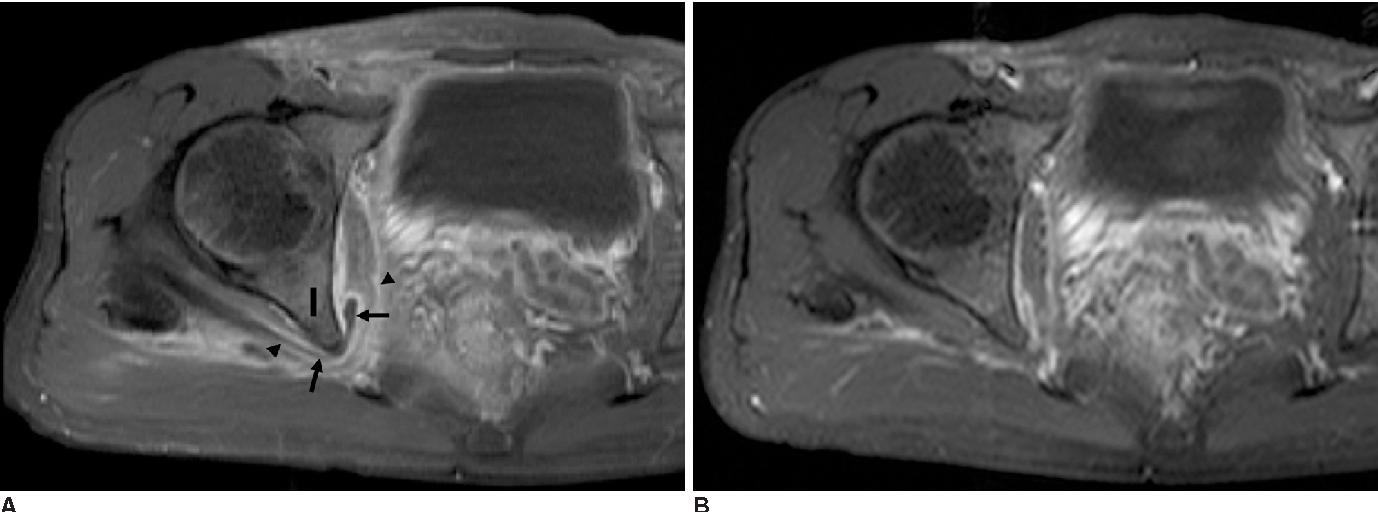 MR Imaging Features of Obturator Internus Bursa of the Hip ...