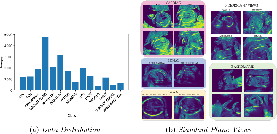 Figure 1 for Semi-supervised Learning of Fetal Anatomy from Ultrasound