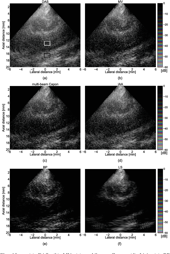 Figure 2 for Beamforming through regularized inverse problems in ultrasound medical imaging