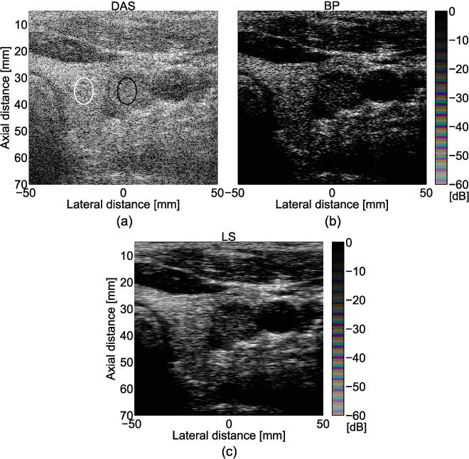 Figure 4 for Beamforming through regularized inverse problems in ultrasound medical imaging
