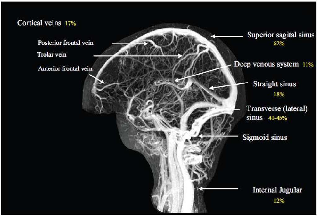 Cerebral Venous Sinus Thrombosis-Diagnostic Strategies and ...