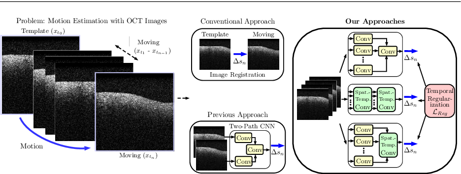 Figure 1 for Spatio-Temporal Deep Learning Methods for Motion Estimation Using 4D OCT Image Data