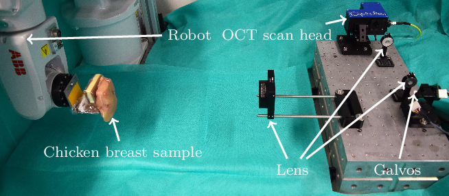 Figure 3 for Spatio-Temporal Deep Learning Methods for Motion Estimation Using 4D OCT Image Data