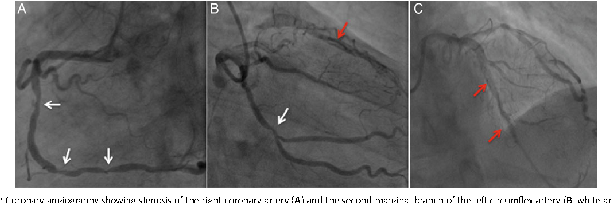 Figure 1: Coronary angiography showing stenosis of the right coronary artery  (A) and