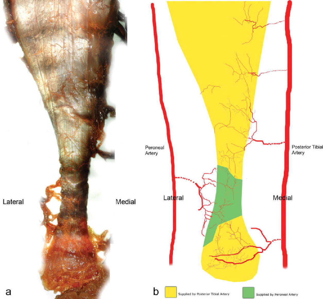 The arterial anatomy of the Achilles tendon: anatomical study and ...