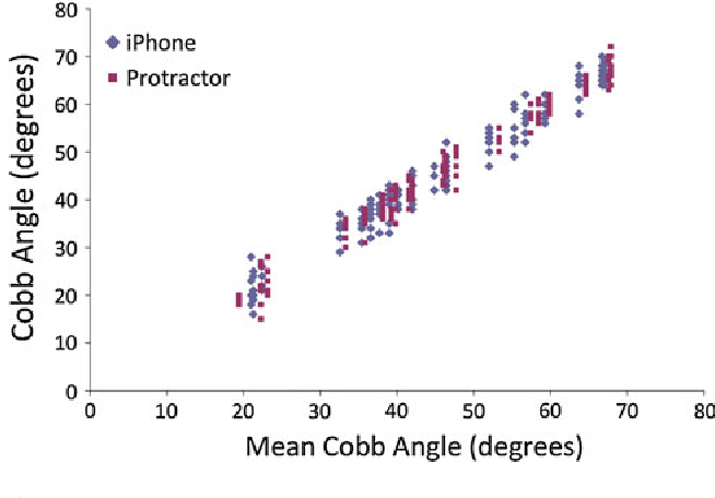 Figure 2 from Use of the iPhone for Cobb angle measurement
