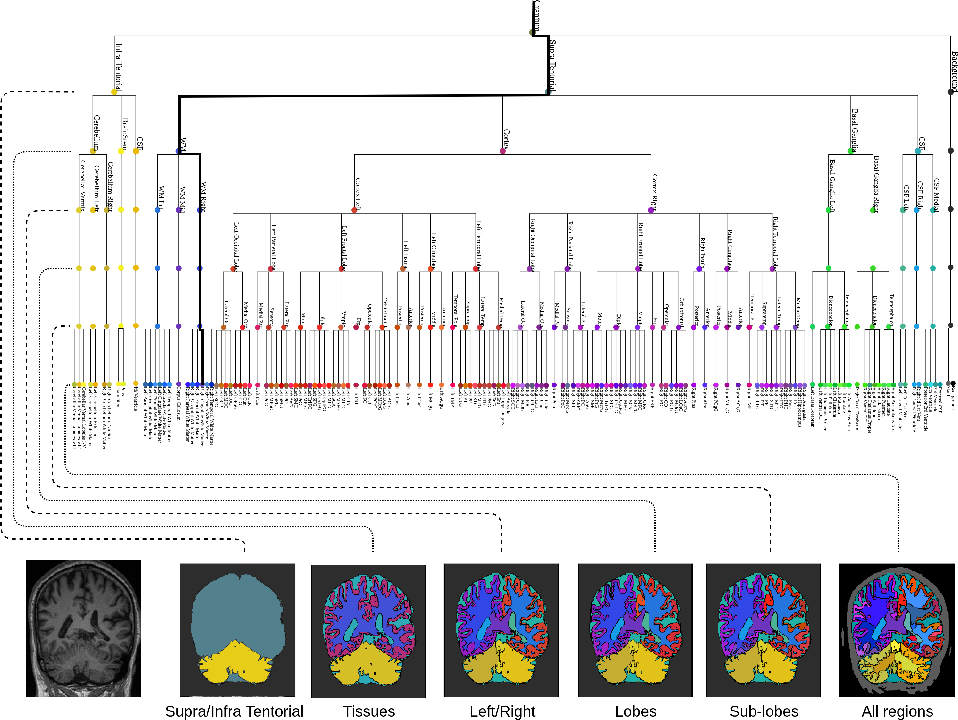 Figure 1 for Hierarchical brain parcellation with uncertainty