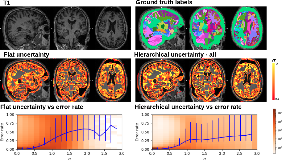 Figure 3 for Hierarchical brain parcellation with uncertainty