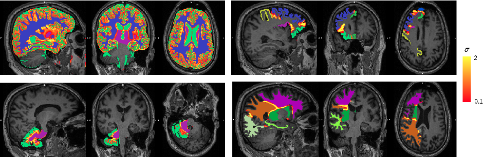Figure 4 for Hierarchical brain parcellation with uncertainty
