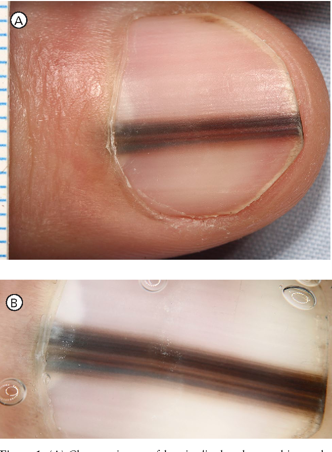 Nail matrix melanoma: consecutive cases in a general practice ...