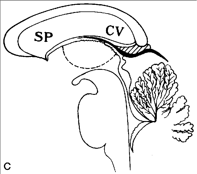 Sonographic characteristics of the cavum velum interpositum ...