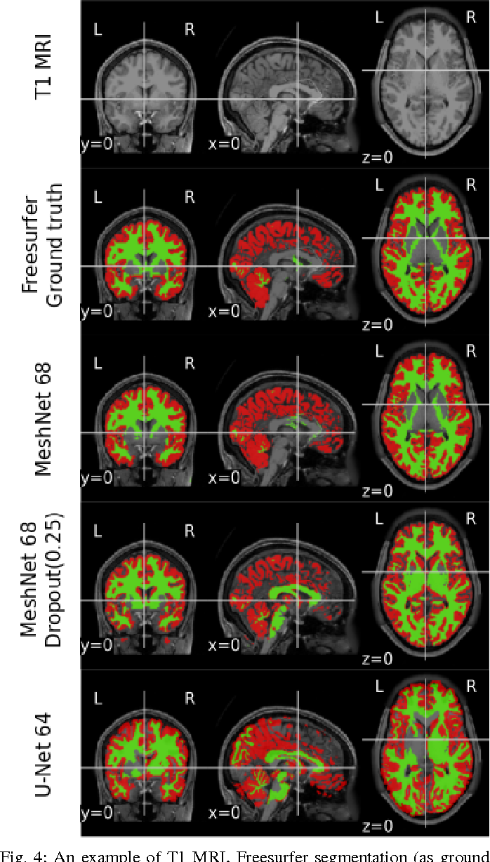 Figure 4 for End-to-end learning of brain tissue segmentation from imperfect labeling