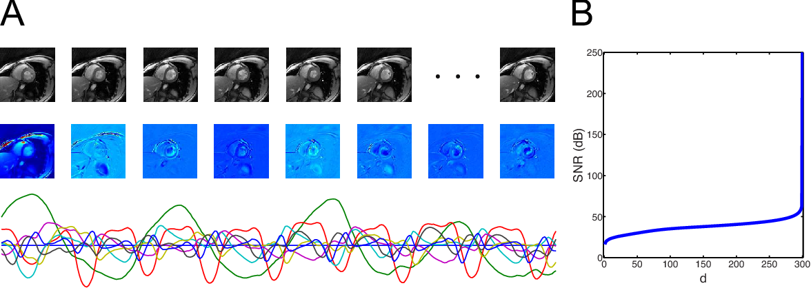 Figure 1 for Video Compressive Sensing for Dynamic MRI