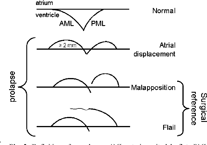 Assessment of functional anatomy of the mitral valve in patients ...