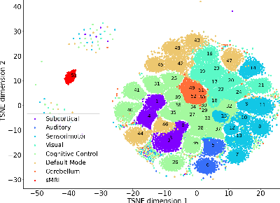 Figure 1 for Fusing multimodal neuroimaging data with a variational autoencoder
