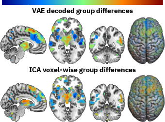 Figure 3 for Fusing multimodal neuroimaging data with a variational autoencoder