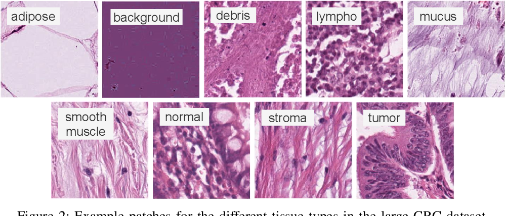 Figure 2 for Offline versus Online Triplet Mining based on Extreme Distances of Histopathology Patches