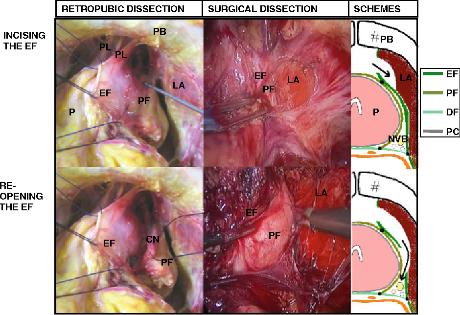 Fascia Surrounding The Prostate Clinical And Anatomical Basis Of