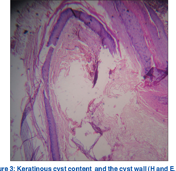 Figure 3: Keratinous cyst content and the cyst wall (H and E, ×