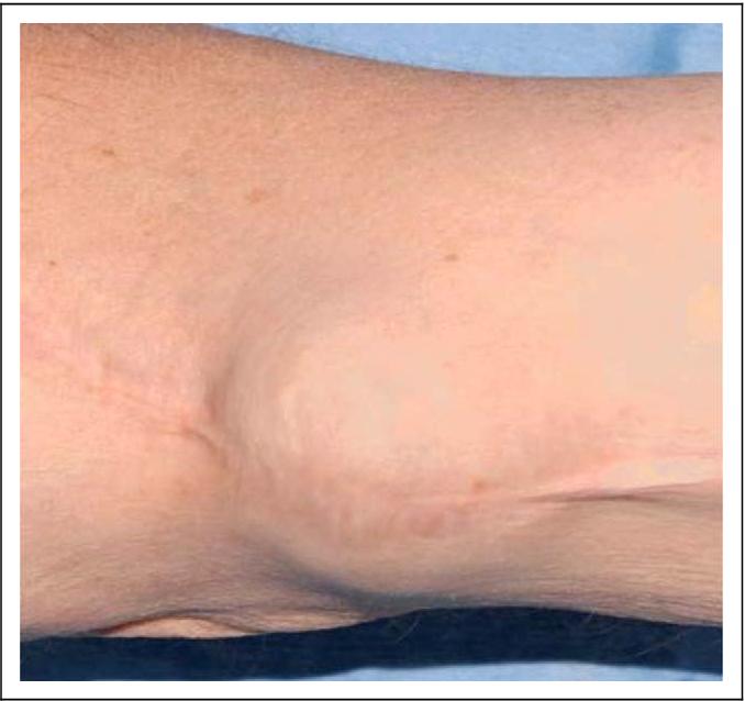 Figure 1 from Brachial artery aneurysm following open repair of ...