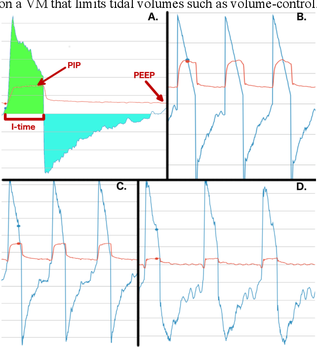Figure 1 for Improving Mechanical Ventilator Clinical Decision Support Systems with A Machine Learning Classifier for Determining Ventilator Mode