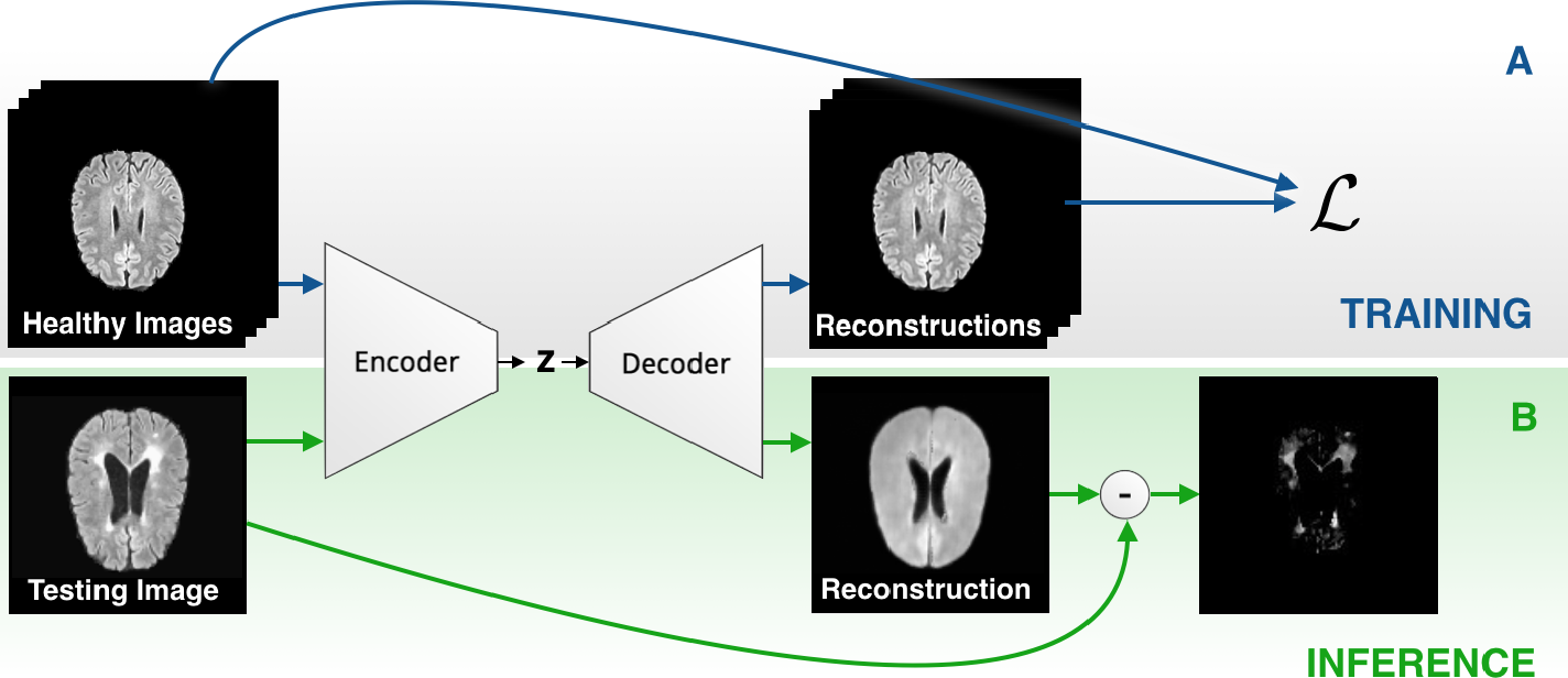 Figure 1 for Autoencoders for Unsupervised Anomaly Segmentation in Brain MR Images: A Comparative Study