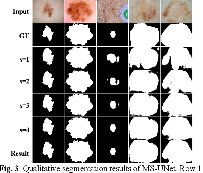 Figure 4 for A Multi-stage Framework with Context Information Fusion Structure for Skin Lesion Segmentation