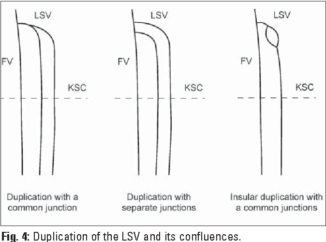Long Saphenous Vein And Its Anatomical Variations Semantic Scholar
