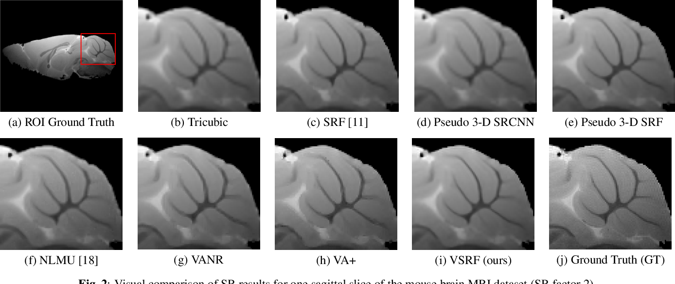 Figure 3 for Learning from a Handful Volumes: MRI Resolution Enhancement with Volumetric Super-Resolution Forests