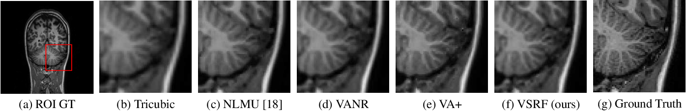 Figure 4 for Learning from a Handful Volumes: MRI Resolution Enhancement with Volumetric Super-Resolution Forests
