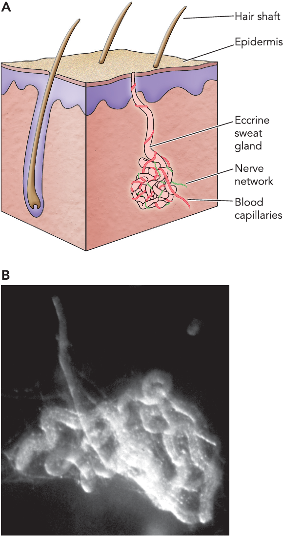 Figure 1 From Cystic Fibrosis Lessons From The Sweat Gland