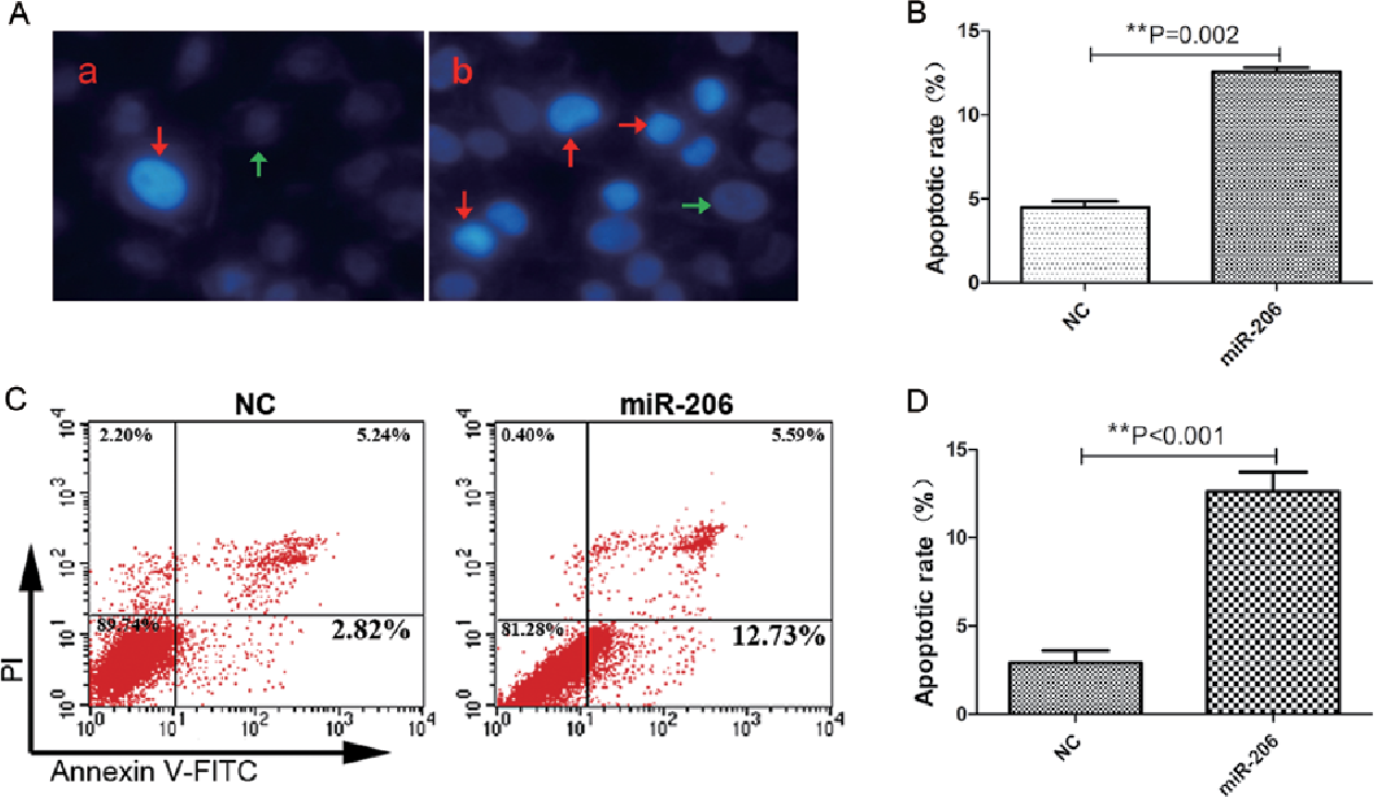 Figure 5. Overexpression of miR-206 promotes apoptosis of human hepatocellular carcinoma HepG2 cells. (A) Hoechst 33342 staining of each group of HepG2 cells. (a) Mimic negative control (NC) group. (b) miRNA-206-transfected group. The red and green arrows indicate the apoptotic and normal cells, respectively.