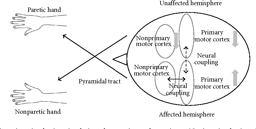 Figure 1 from Noninvasive Brain Stimulation for Motor Recovery after