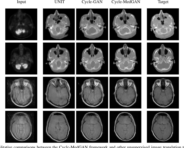 Figure 3 for Unsupervised Medical Image Translation Using Cycle-MedGAN