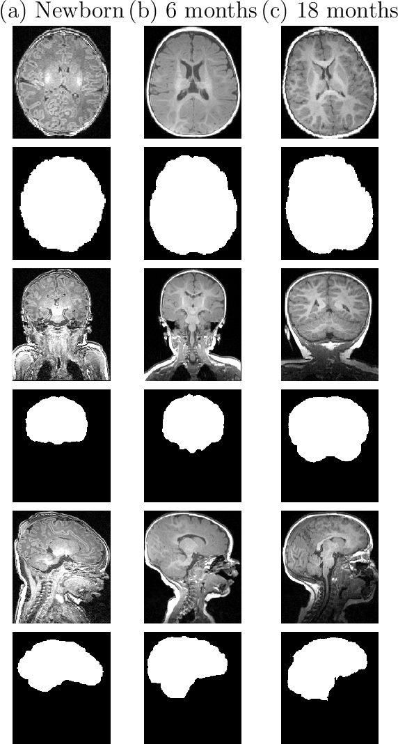 Figure 1 for Fast Infant MRI Skullstripping with Multiview 2D Convolutional Neural Networks