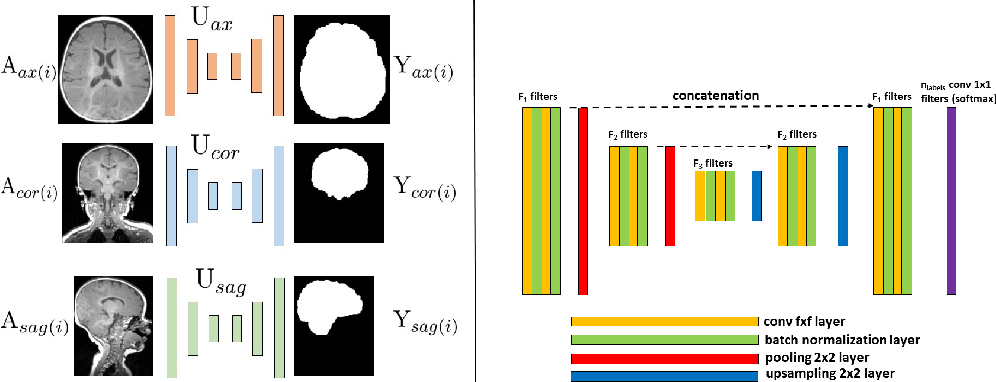 Figure 3 for Fast Infant MRI Skullstripping with Multiview 2D Convolutional Neural Networks