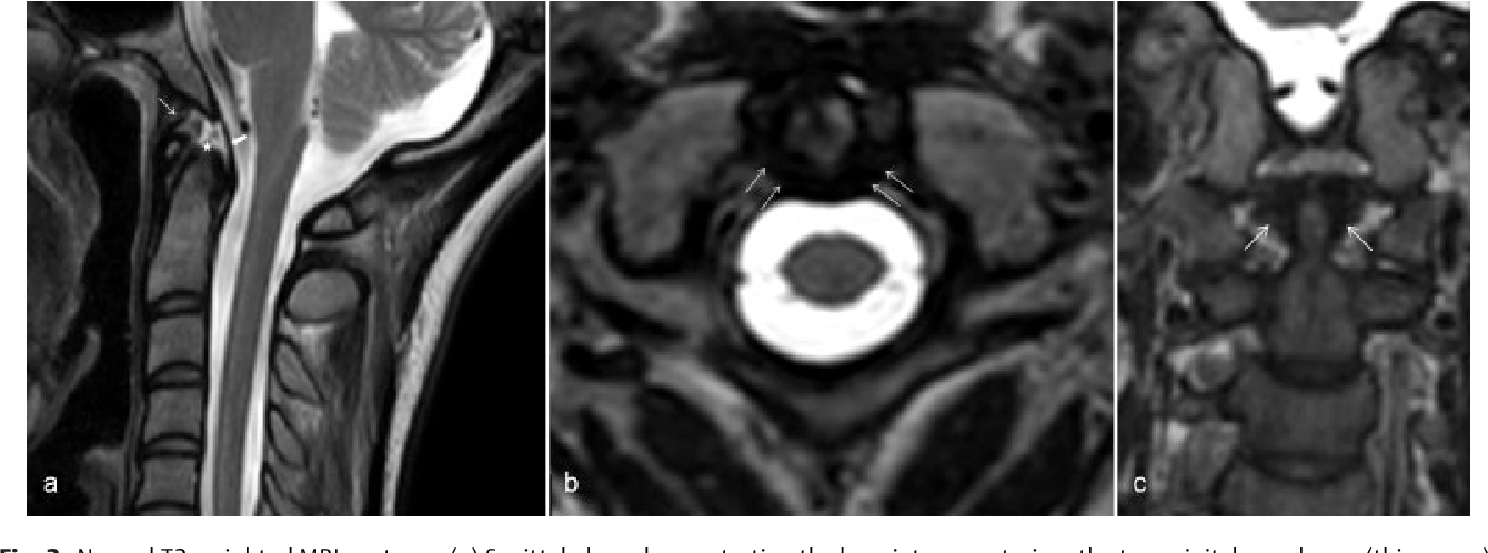 Figure 2 from Trauma Imaging of the Acute Cervical Spine. - Semantic ...