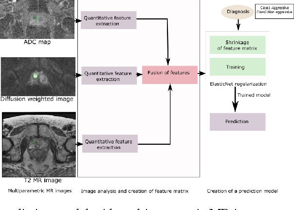 Figure 1 for Computerized Multiparametric MR image Analysis for Prostate Cancer Aggressiveness-Assessment