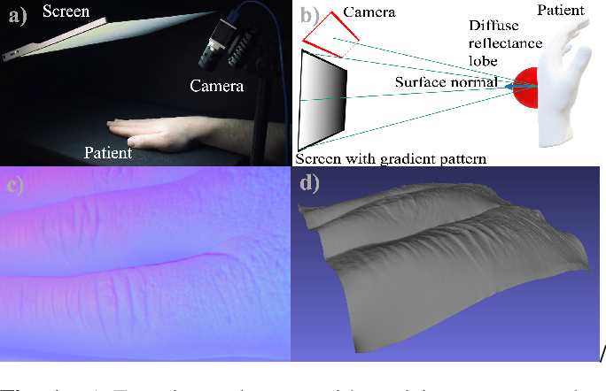 Figure 1 for SkinScan: Low-Cost 3D-Scanning for Dermatologic Diagnosis and Documentation