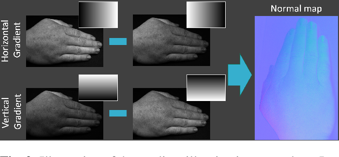 Figure 2 for SkinScan: Low-Cost 3D-Scanning for Dermatologic Diagnosis and Documentation