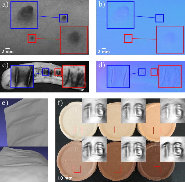 Figure 4 for SkinScan: Low-Cost 3D-Scanning for Dermatologic Diagnosis and Documentation