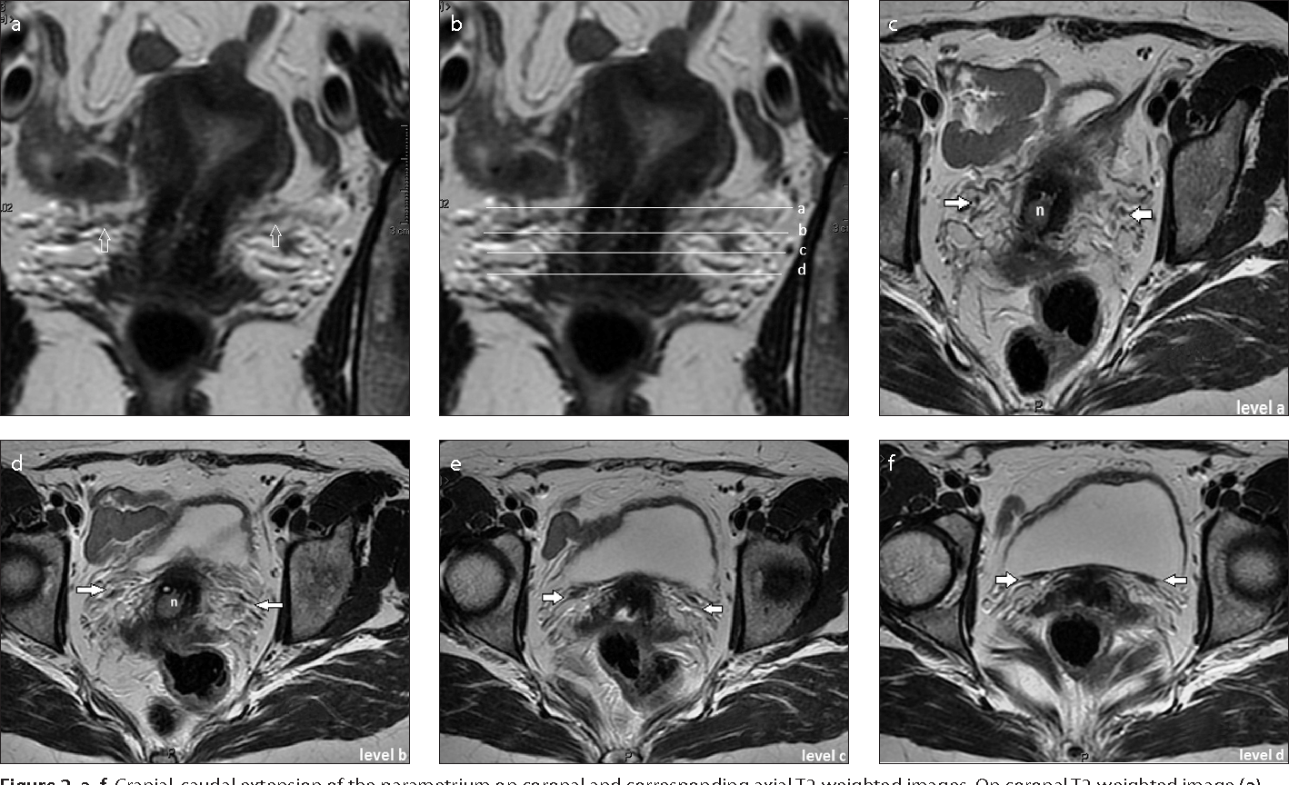 Mri anatomy of parametrial extension to better identify local figure 2 ccuart Image collections