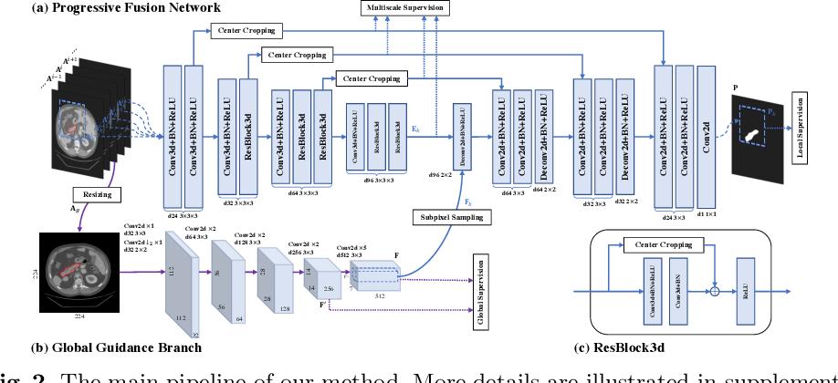 Figure 3 for Globally Guided Progressive Fusion Network for 3D Pancreas Segmentation