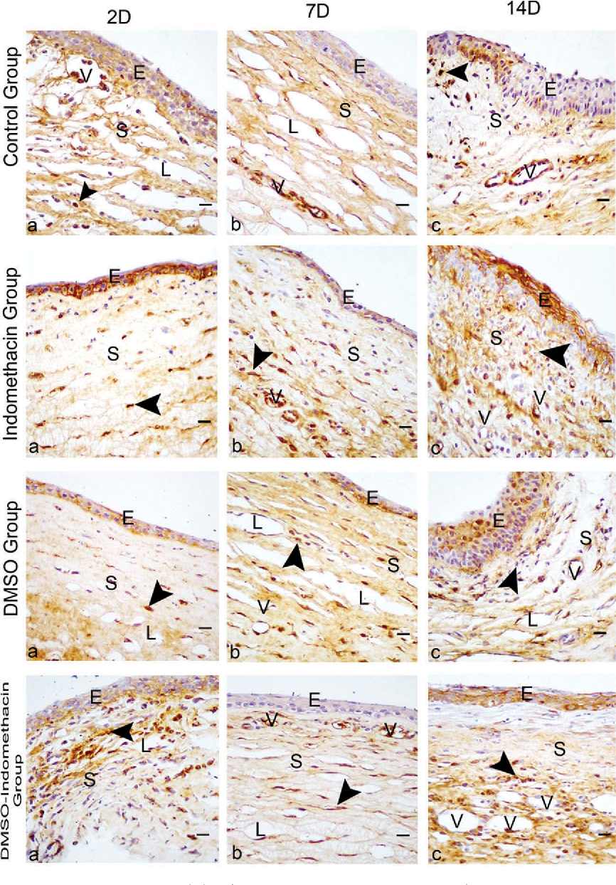 Topical dimethyl sulfoxide inhibits corneal neovascularization and