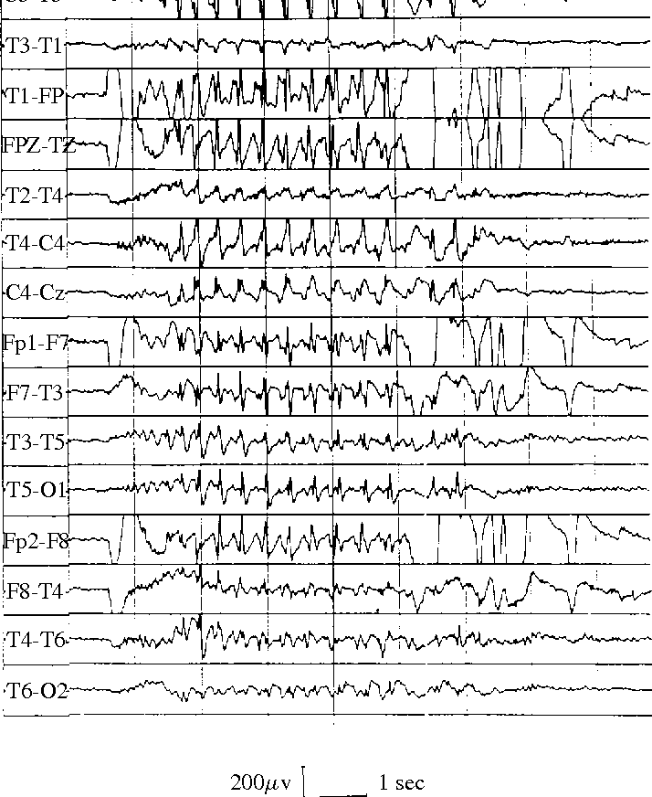 Fig. 1: Surface EEG of a patient with an idiopathic generalized epilepsy, showing generalized 3 Hz spike–wave complexes.
