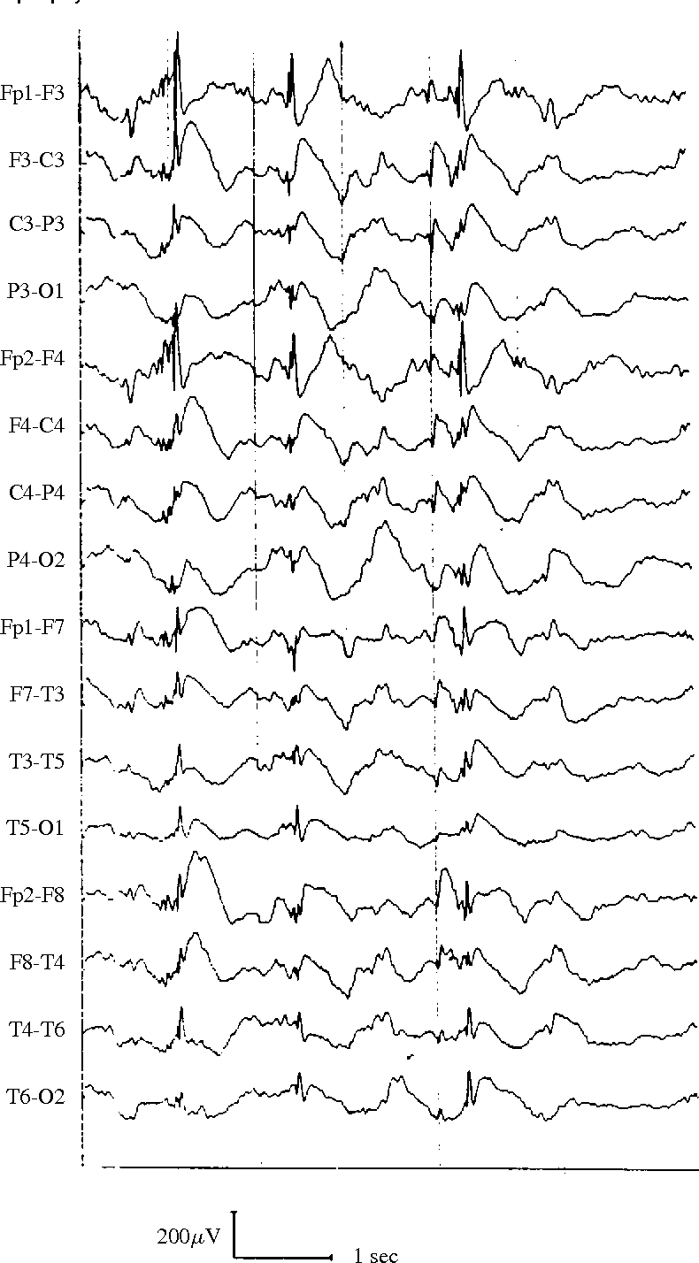 Fig. 3: Surface EEG of a patient with a symptomatic generalized epilepsy, showing generalized slow spike–wave complexes.