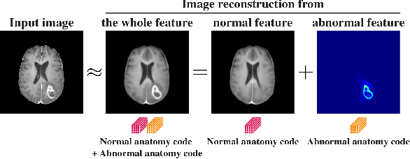 Figure 1 for Decomposing Normal and Abnormal Features of Medical Images for Content-based Image Retrieval