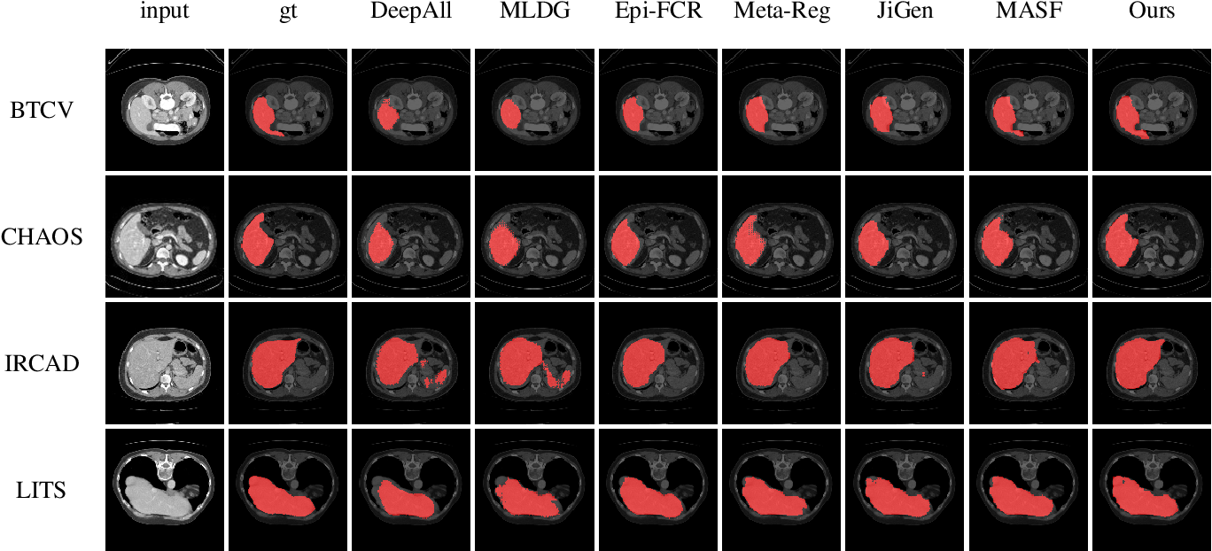 Figure 2 for Domain Generalization on Medical Imaging Classification using Episodic Training with Task Augmentation