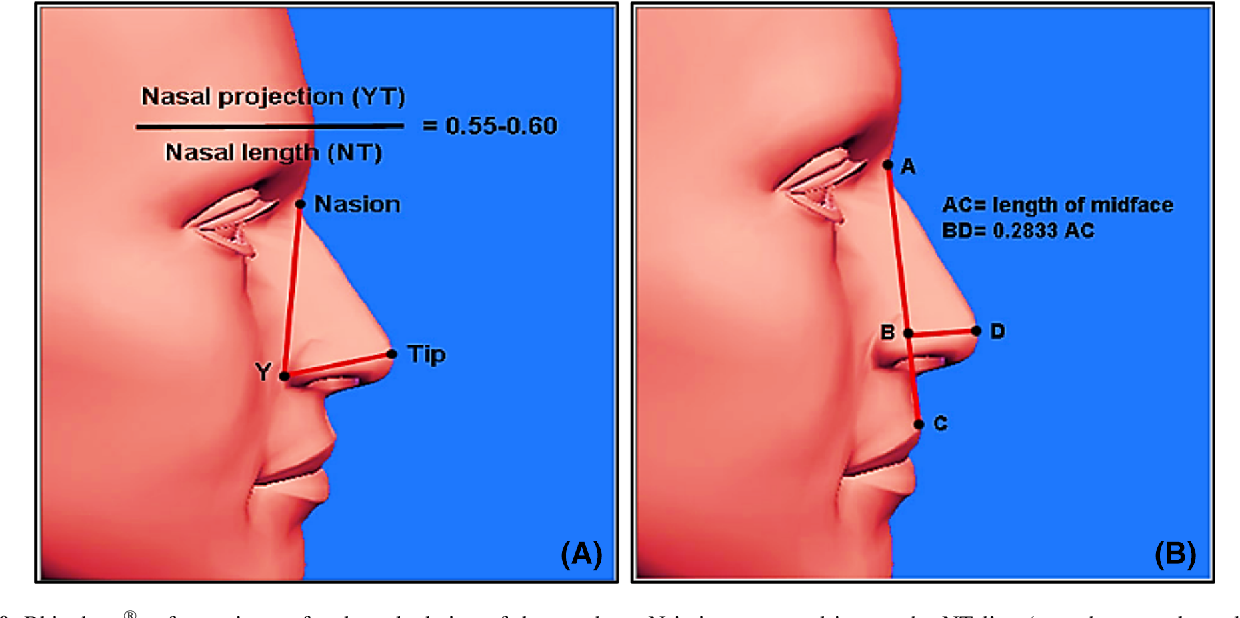 Figure 10 from Anthropometric Analysis of the External Nose of the
