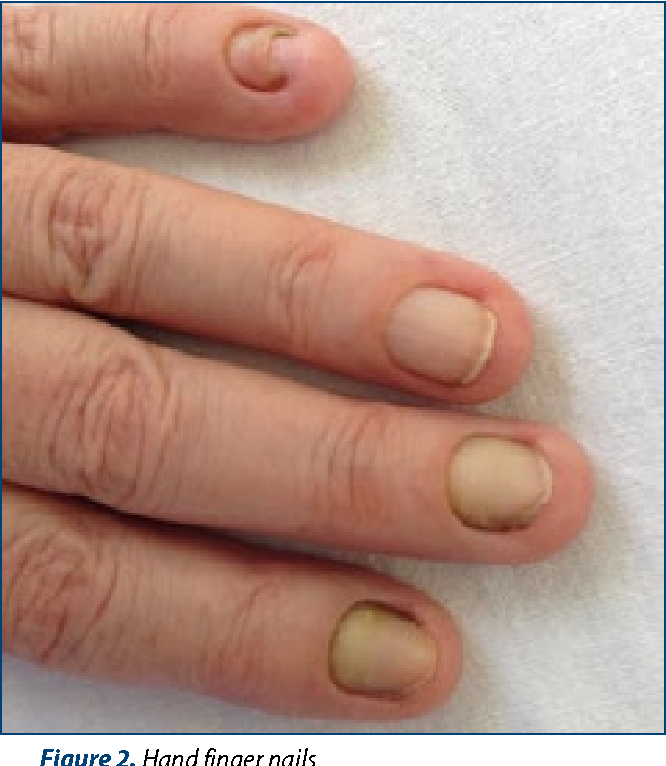 A curious case of yellow nail syndrome. - Semantic Scholar